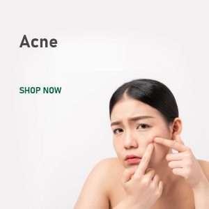 cat acne